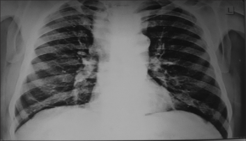 Figure 1: Chest X-ray with deviation of the mediastinum to the right suggesting left superior mediastinal mass