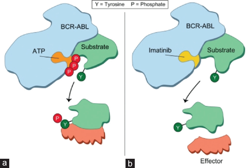 Figure 3: Mechanism of action of imatinib in chronic myelogenous leukemia, (a)It binds to the amino acids of the BCR/ABL tyrosine kinase adenosine triphosphate binding site and stabilizes the inactive, nonadenosine triphosphate binding form of BCR/ABL. (b) How imatinib preventing tyrosine autophosphorylation and, in turn, phosphorylation of its substrates